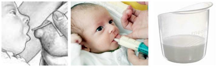 Dokrm předčasně narozeného dítěte suplementorem (nejvhodnější metoda), ze stříkačky (nepříliš vhodná metoda) a pohárek (vhodný prosředek pro krmení nepřisávajícího se dítěte)