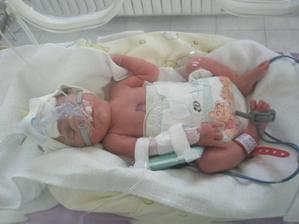Adélka hned po narození