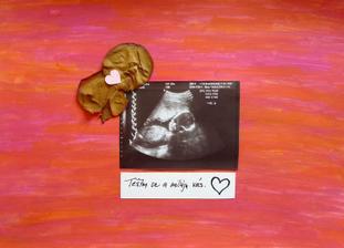 Vzpomínka na těhotenství s Aničkou..Fotka z ultrazvuku, kousek Valentýnky od manžílka asi 14 dní po pozitivním testu a dva okvětní plátky růžičky za porod :)
