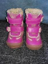 Zimní kožené kotníkové boty, protetika,24