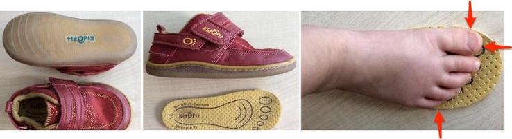 Dítě by mělo mít botičky se stélkou širší a delší v místě šipek