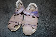 Letní sandály protetika, protetika,30