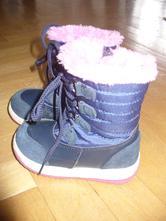 Zimní boty, protetika,21
