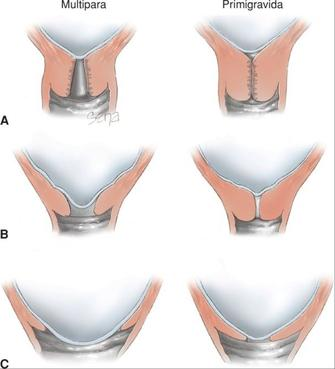 Roztahování děložního hrdla a vytvoření děložní branky