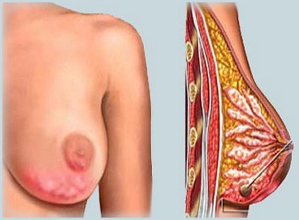 Výsledek obrázku pro zánět prsu