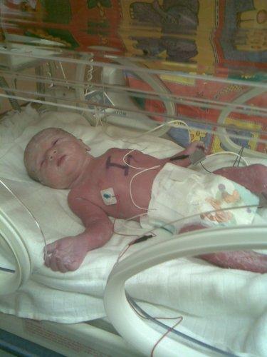 Klárinka hned po narození